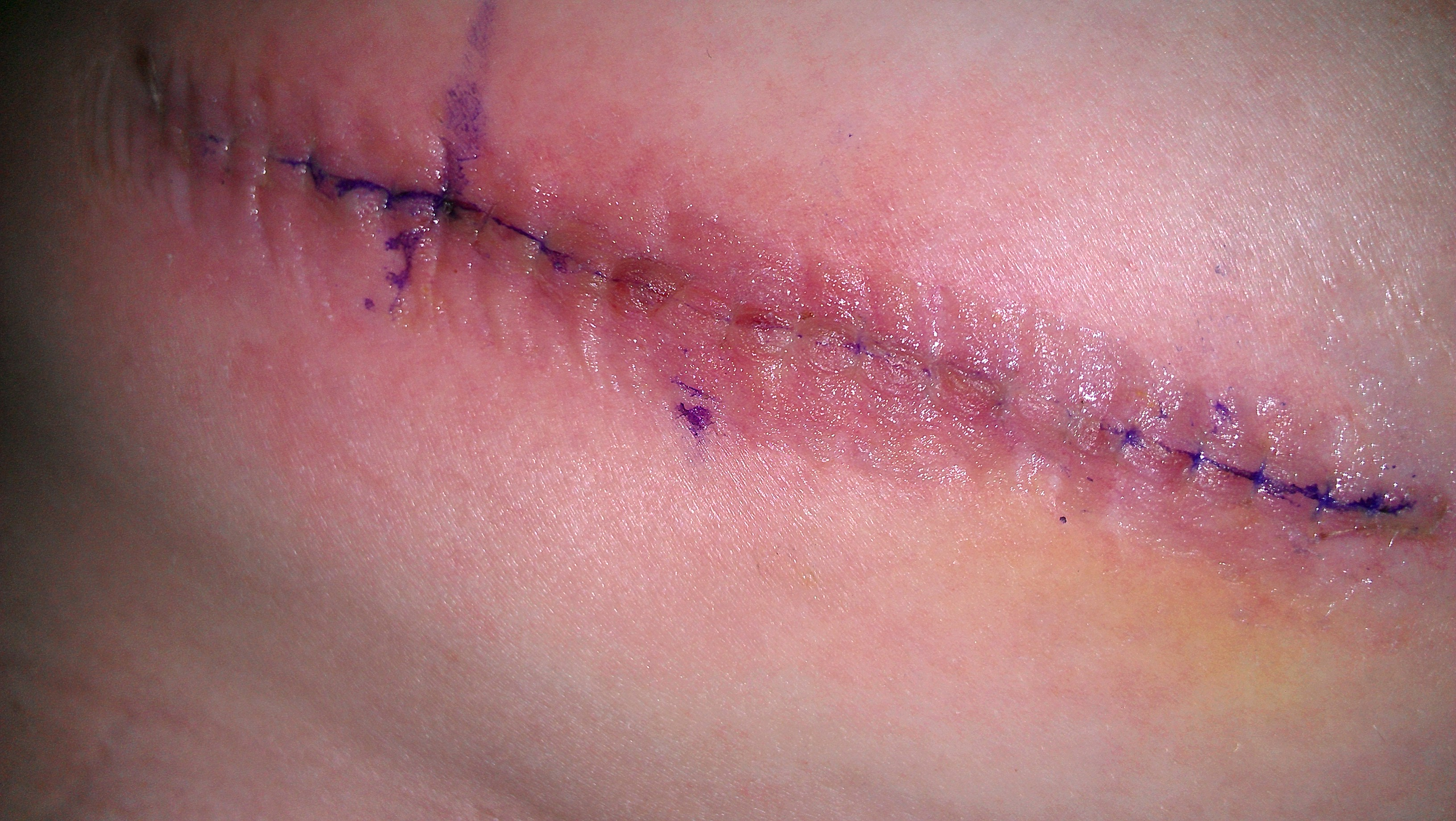 LP Shunt surgical scar.